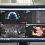 TAC dentale Cone Beam 3D